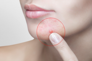 Pregnancy acne remedies for you